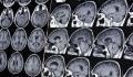 Creierul la femei este ''mai tinar'' cu trei ani decit creierul la barbati, conform unui nou studiu